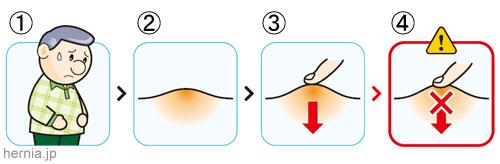 鼠径 ヘルニア 原因 鼠径ヘルニア(脱腸)の症状、手術方法や術後の経過、原因や予防など